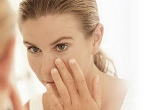 Thâm quầng mắt là biểu hiện của bệnh gì?