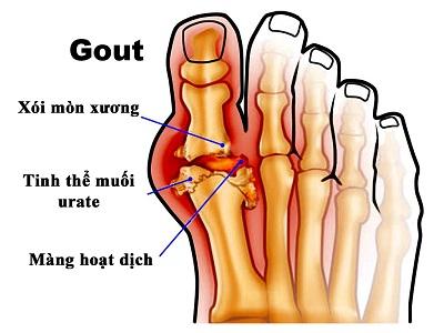 Chữa bệnh gout bằng lá vối tươi theo bài thuốc gia truyền