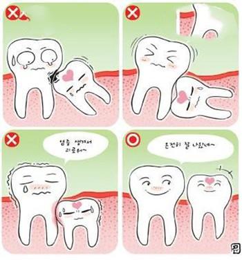 Mọc răng khôn ở người lớn nên nhổ hay để tự nhiên?