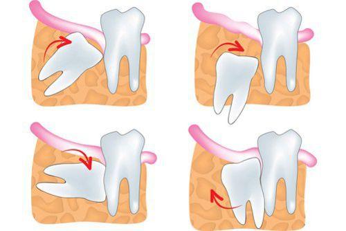 Nhổ răng khôn mọc lệch có nguy hiểm không?