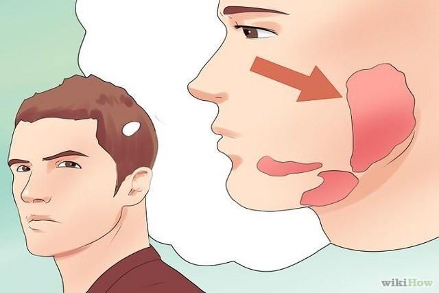 Bệnh quai bị ở người lớn triệu chứng và cách điều trị