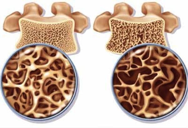 Cách phòng chống bệnh loãng xương ngay khi còn trẻ