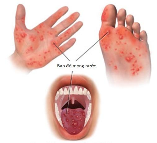 Cách phòng chống bệnh tay chân miệng ở trẻ em tại nhà