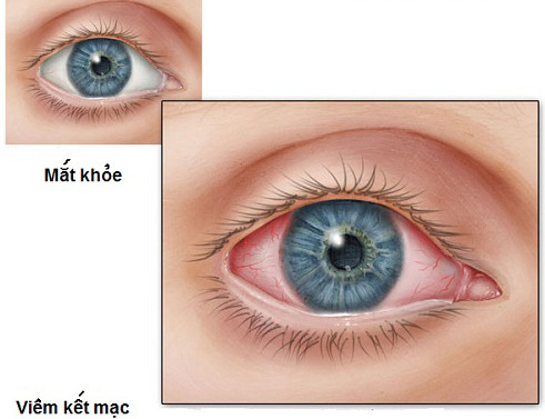 Cách phòng bệnh đau mắt đỏ cho trẻ khi dịch đang vào mùa