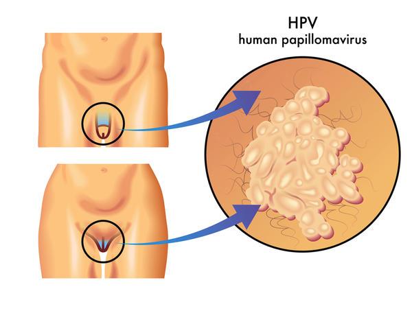 Virus HPV có nguy hiểm không & phòng bệnh như thế nào?