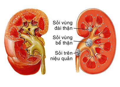 Bài thuốc chữa sỏi thận bằng quả dứa